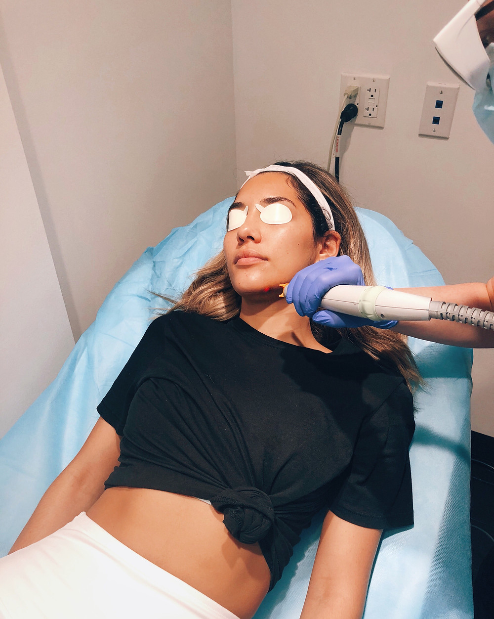 Blogger Barbie Brignoni getting a laser genesis aka laser facial at Glamoi Med Spa