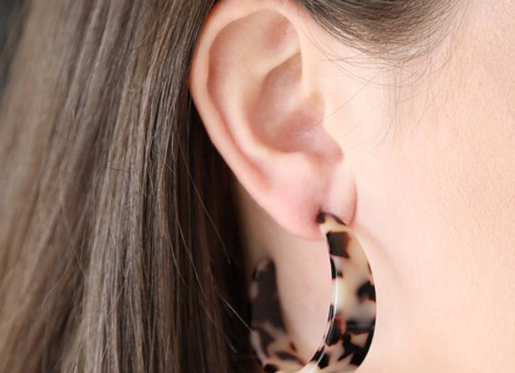 Wide Tortoiseshell Hoop Earrings