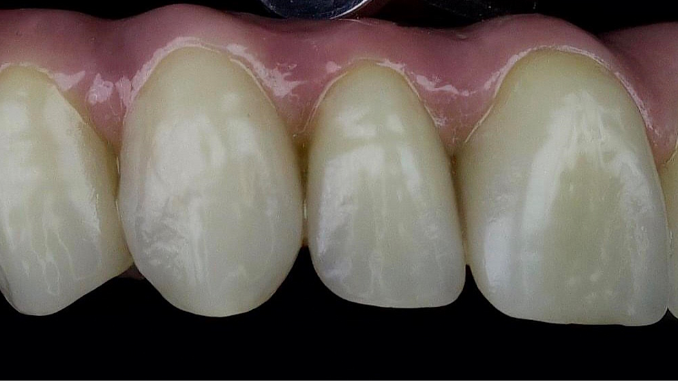 Full Arch Screw Retained
