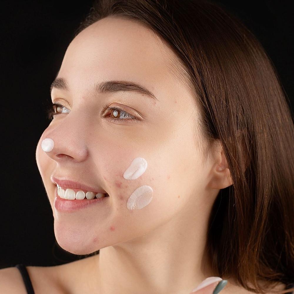 Garota com pele acneica aplicando hidratante facial adequado ao seu tipo de pele