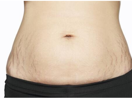 Those Pesky Stripes – We Call Stretch Marks!