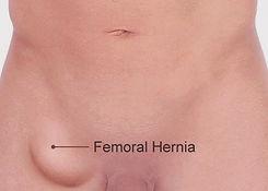 Femoral-Hernia (1).jpg