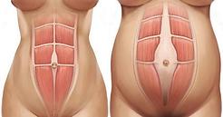 healDRA-diagram-450x236.png