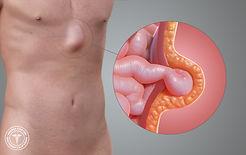 epigastric-hernia.jpg