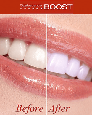 boost-teeth-whitening-600x600.png