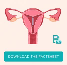 Download the IUD FAQ - Fact Sheet | Clinic 66