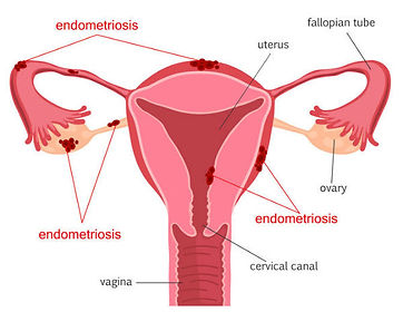 Symptoms and Signs of Endometriosis - Clinic 66 Chatswood