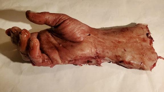 mutated male hand
