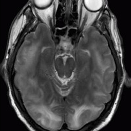 A Case of Posterior Reversible Encephalopathy Syndrome