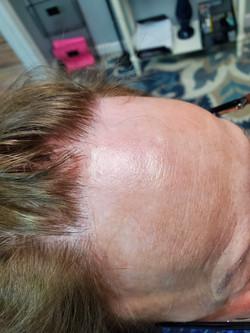 Hairline Hair loss
