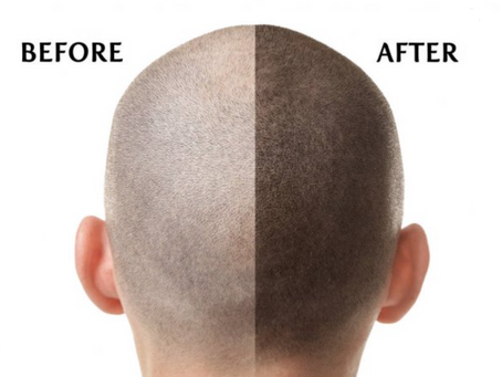 Non-Surgical Hair Replacement In Desoto, Tx