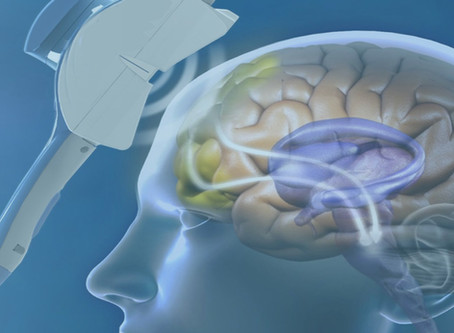 Transcranial Magnetic Stimulation: An Effective Noninvasive Therapy