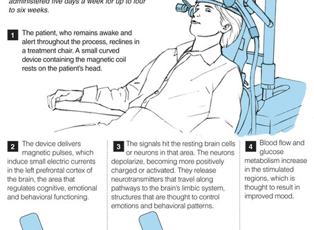 Recommended Read: Magnetic Pulses to Battle Depression