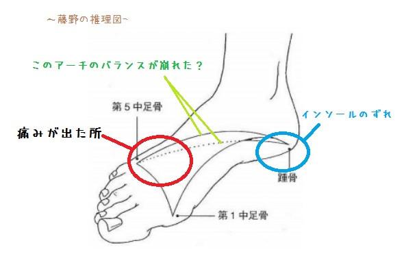 足弓(アーチ)の図