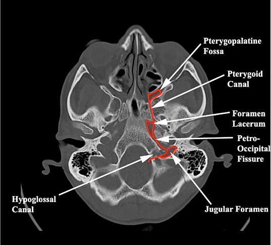 brain and spine school | head ct interpretation, Human Body