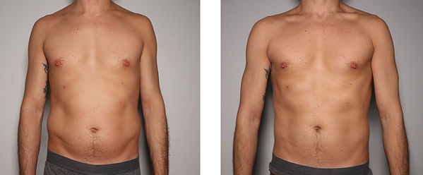 Male Abdomen Toning- Before & After.jpg