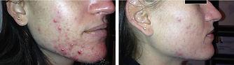 acne-treatment-3.jpg