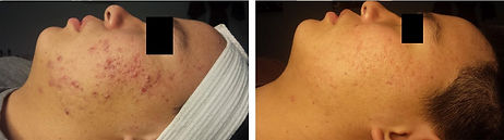acne-treatment-1-2.jpg