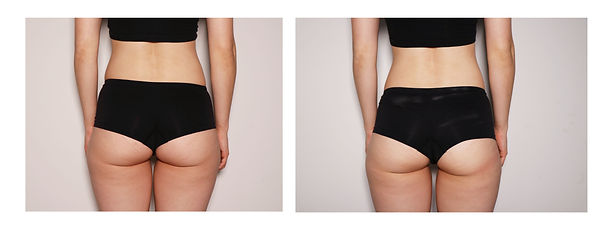 Female Butt Toning- Before & After.jpg