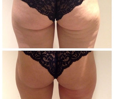 Back of Thigh Toning- Before & After.jpg