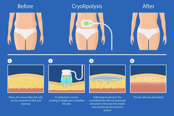 coolsculpting-and-cryolipolysis-treatmen