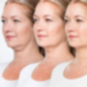 coolsculpting-brisbane-chin-fat.jpg