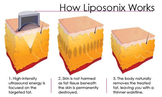 Liposonix.png