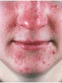 Rosacea or Acne