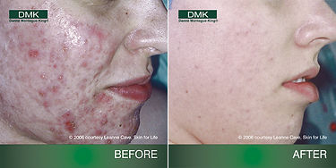 acne-before-after.jpg