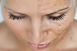 skin-rejuvenation sarasota, facial