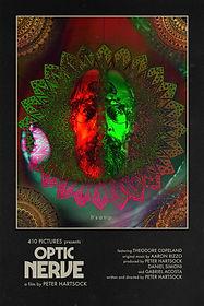 OPTIC NERVE.jpg