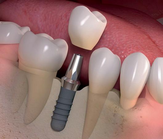 Implante esquema.png