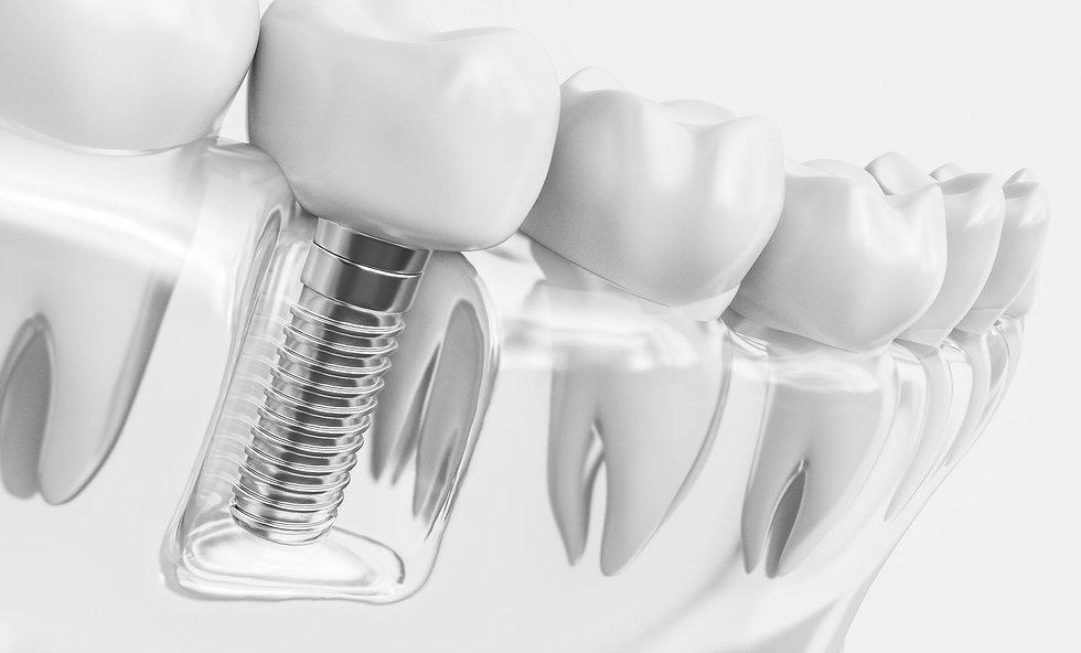 portada-wp-implantes.jpg