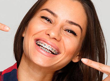 ortodoncia HD.jpg