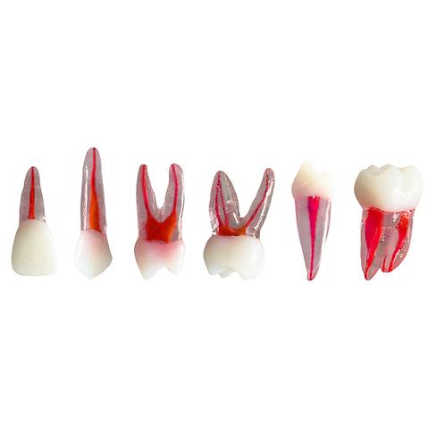 Kit de 6 Dentes Permanentes Transparentes