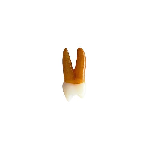 1º Pré-molar Superior Esquerdo
