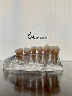 Dispositivo próprio para fixar dentes artificiais IM DO BRASIL
