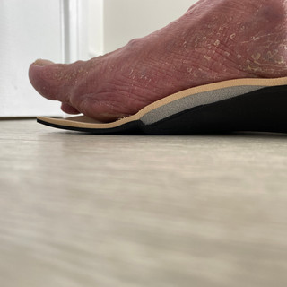Insole supporting medial arch and offloading 1st met head.