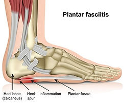 Plantar-fascia-image-resized.jpg