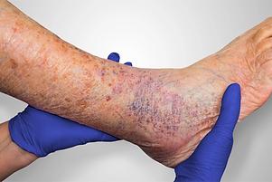 STK_Venous-leg-ulcers_1600x1067.webp
