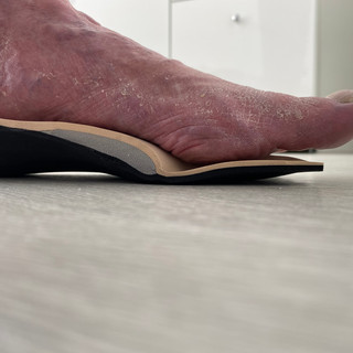 Insole supporting medial arch and offloading 1st Met head