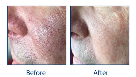 IPL-Before-and-After-Red-Veins-Facial-Ve