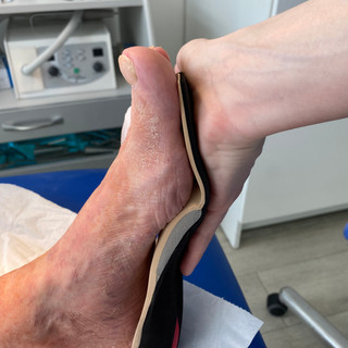 Insole contouring to medial arch