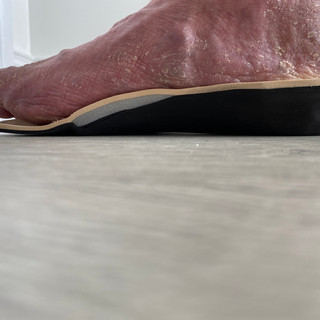Deep heel cup, medial arch support and offloading 1st met head