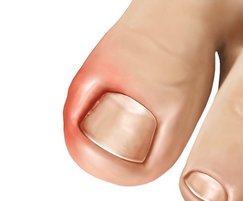 ingrown-toenail.png