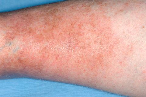 C0017331-Varicose_eczema-SPL-20150428042