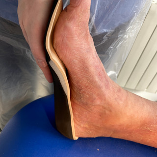 Medial view of left foot contouring to medial arch