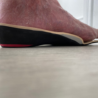 Deep heel cup and heel raise to treat leg length difference