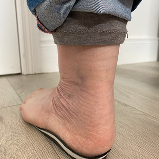 Custom Casted Orthotic Therapy