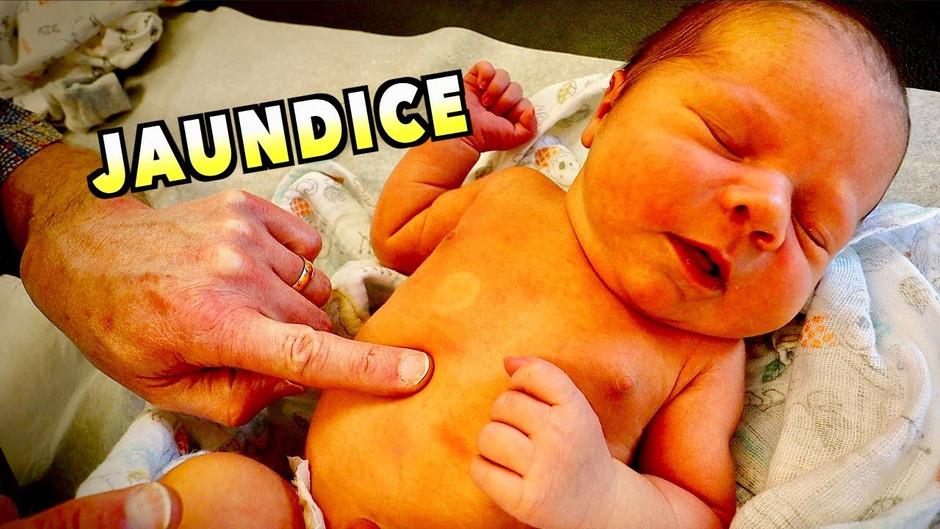Symptom checker for a jaundiced newborn